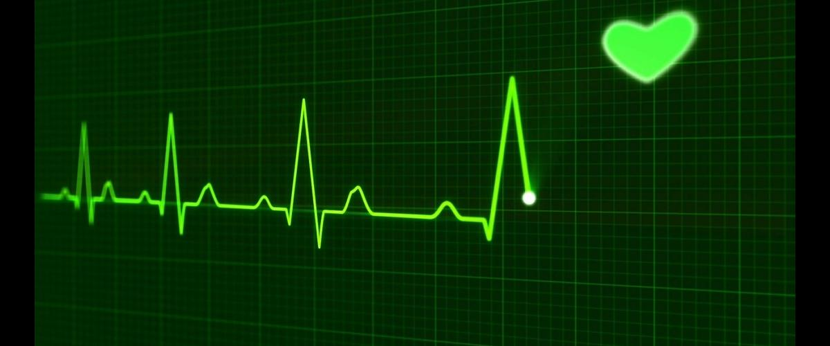 EKG with heart in the corner