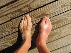 Two feet on a wooden floor.  One of the feet is swollen
